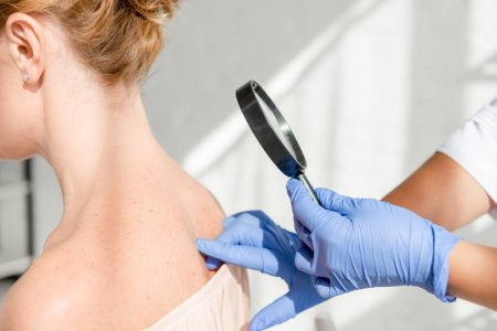Dermatoloji (Cildiye)